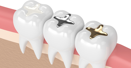 Fix Cavities Between Teeth